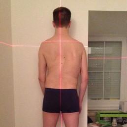 Laser- Bild- und Haltungsanalyse - Der Wirbelsäulentrainer